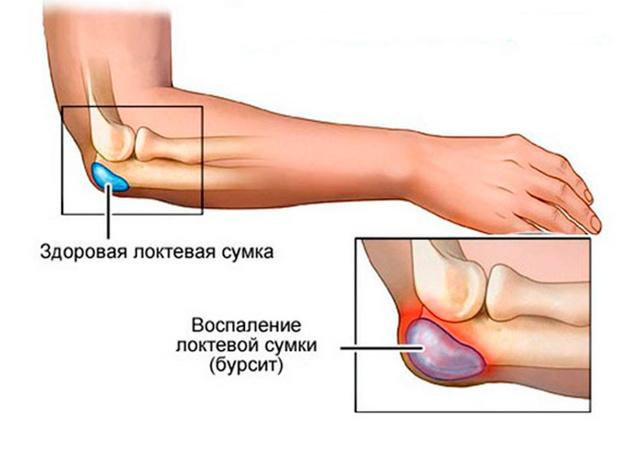 Лечение шишек у большого пальца подагра