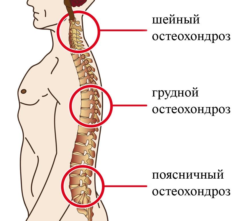 Самое современное в лечении ревматоидного артрита